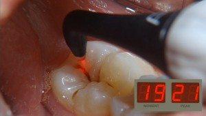 Dental Technology Comfort Dental Lafayette Indiana