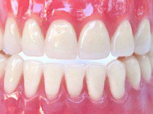 Complete denture