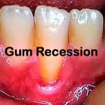 gum recession, chewing tobacco risks