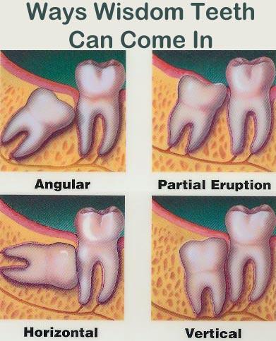 Advice On Wisdom Teeth Comfort Dental Lafayette Indiana