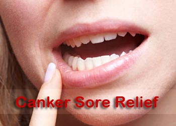 how to get rid of a canker sore on your tongue